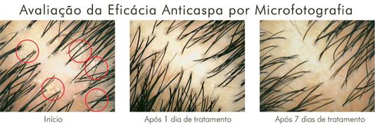 Amplexe Caspa Seca Elimina a caspa do couro cabeludo normal a seco