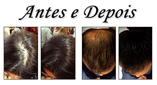Kit Disfarce de Calvície + Spray Fixador + Shampoo Dexe Hair Fibers